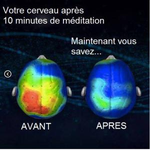 image du cerveau avant et après méditation